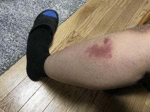 蜂に刺された痕